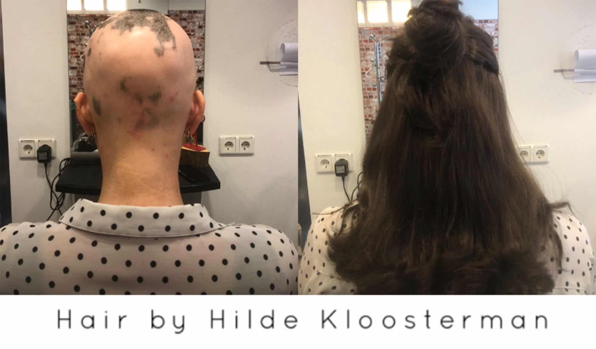 Alopecia-follea-2