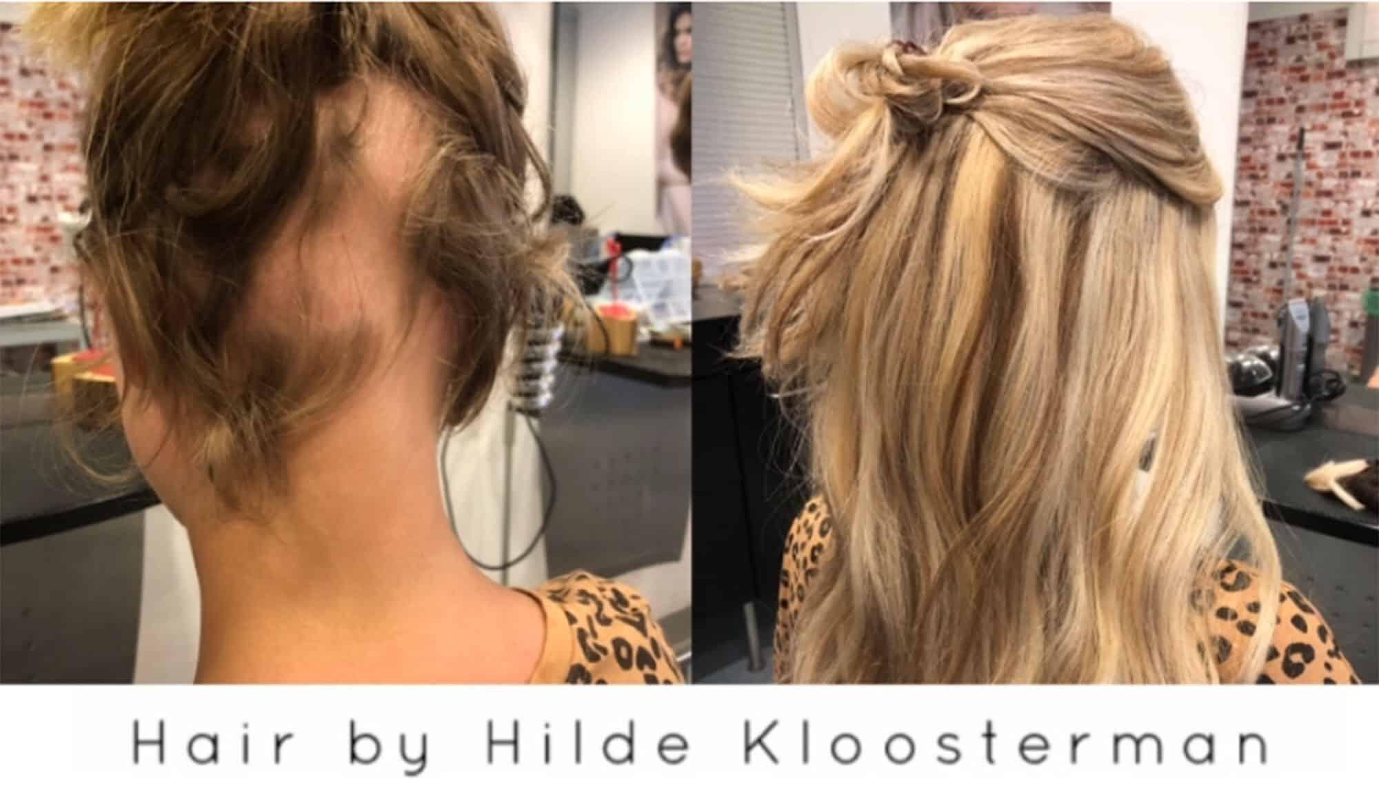 Alopecia-follea