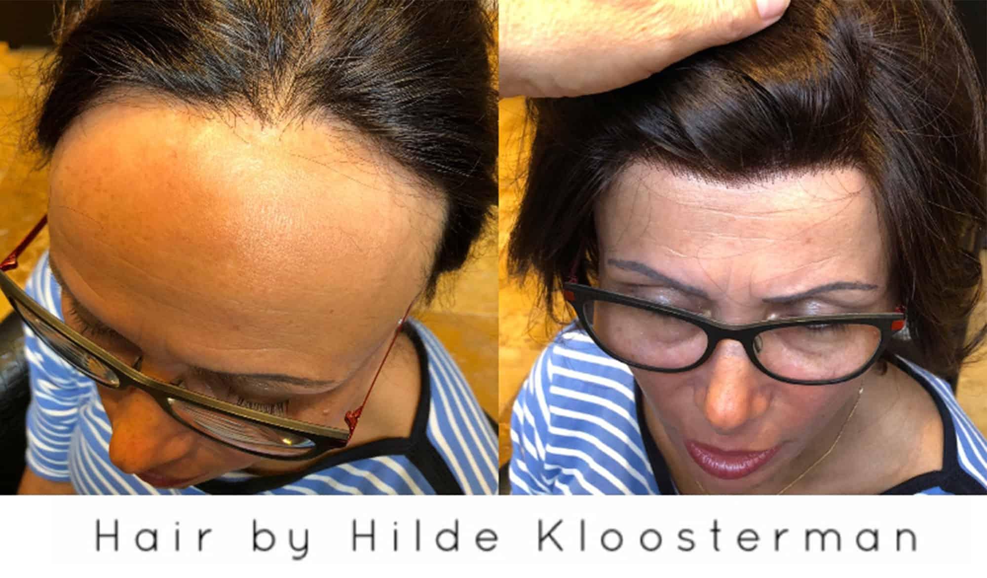 Frontale-alopecia-1