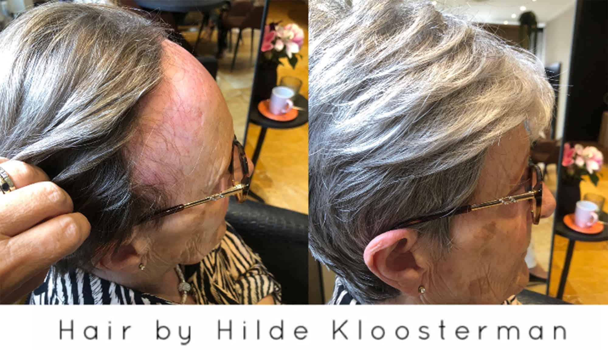 Frontale-alopecia-2