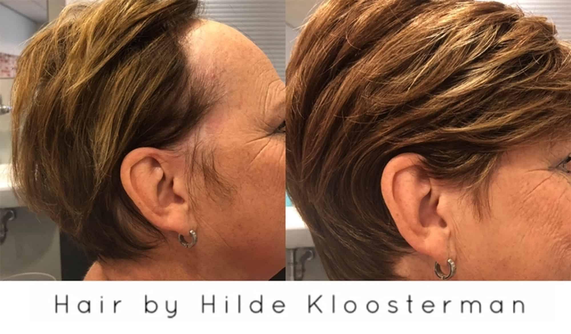 Frontale-alopecia-3