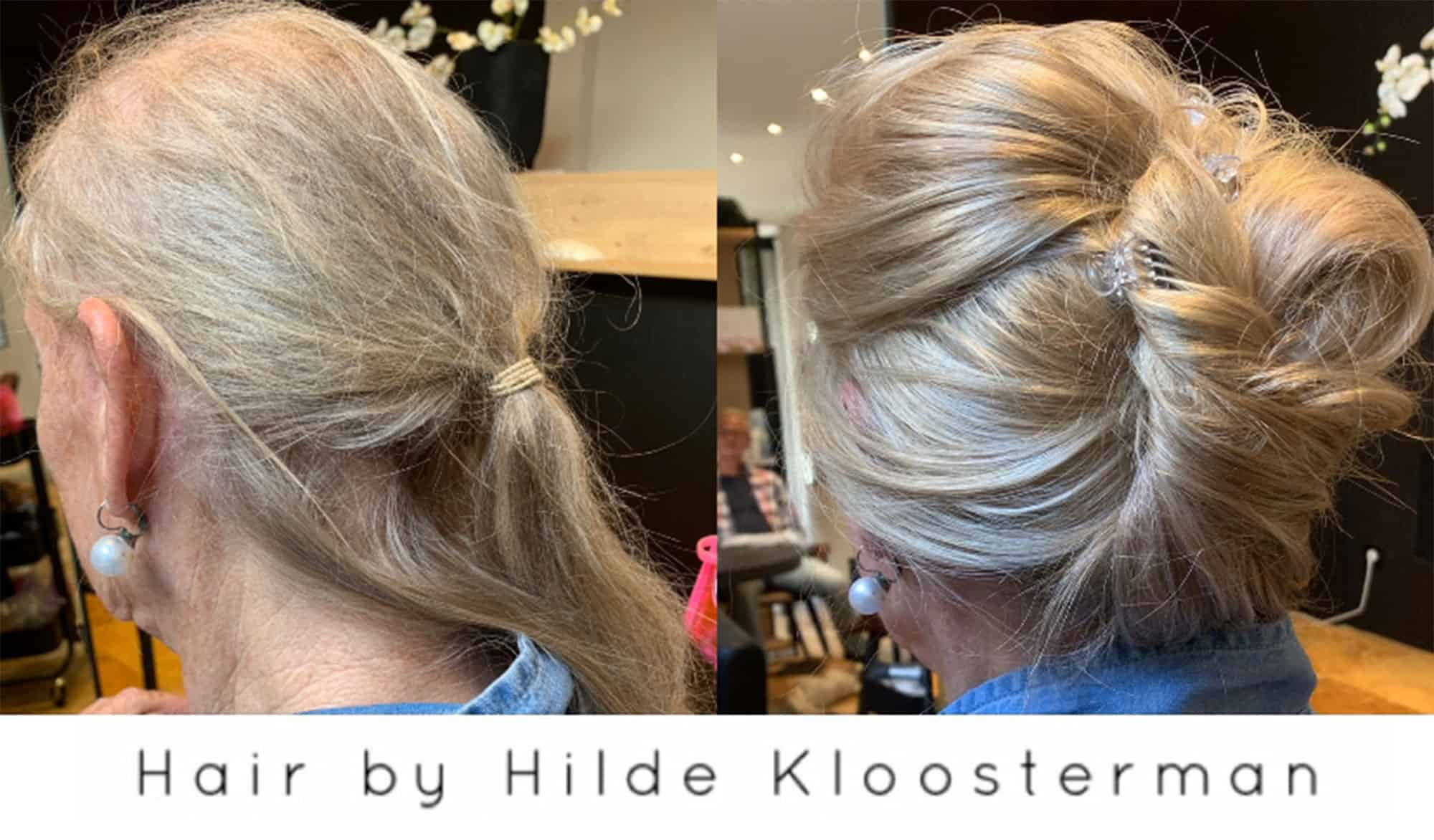 Frontale-alopecia-4